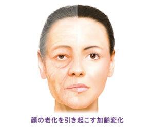 老化・加齢に伴うたるみ・シワ