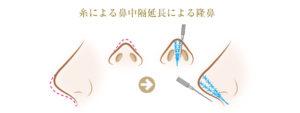 糸による鼻中隔延長による隆鼻